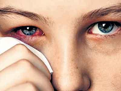 how to cure conjunctivitis