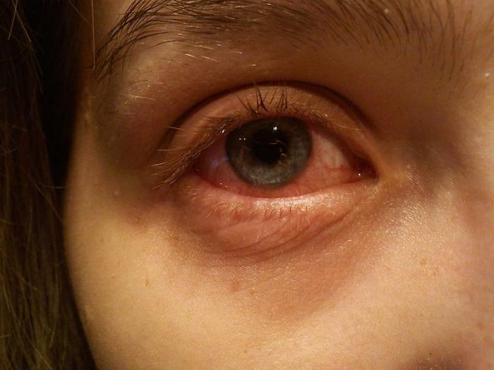 viral conjunctivitis how to treat