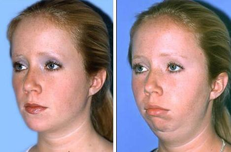 remove cheeks and chin