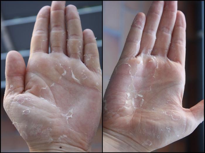 бывает ли аллергия на гиацинт