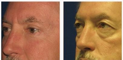 Массаж под глазами от морщин видео - советы косметолога