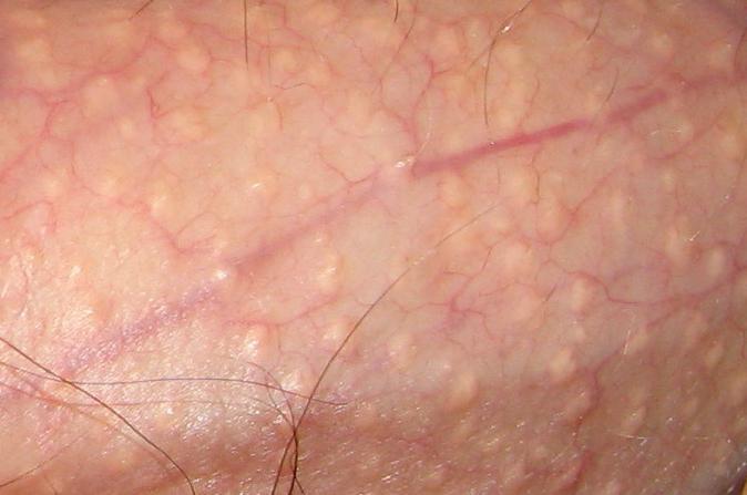 Как вылечить рану на ноге с опухолью