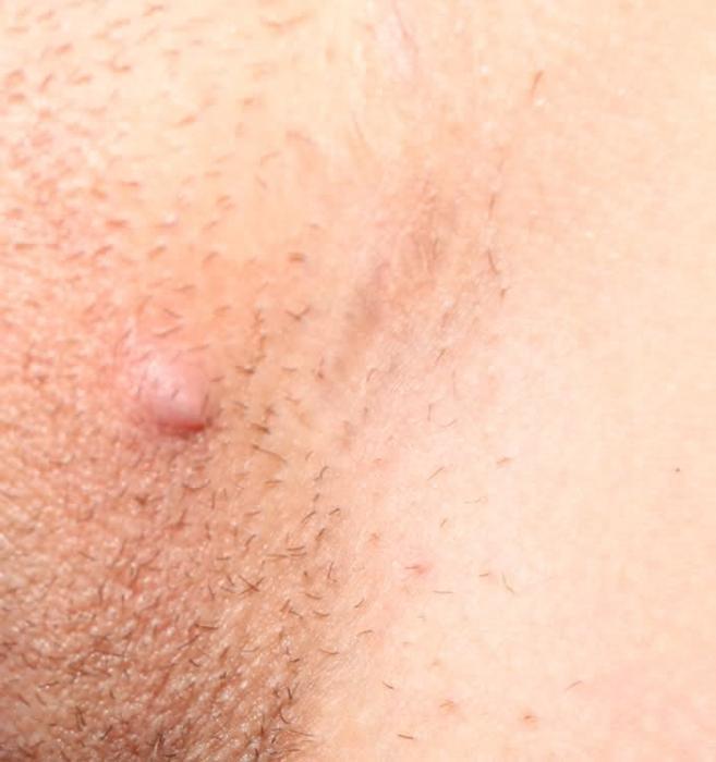 Что и как лечат мухомором
