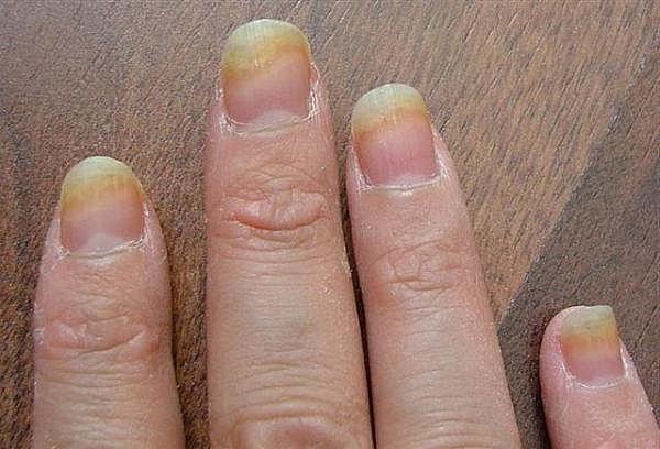 Как лечить грибок на пальцах рук