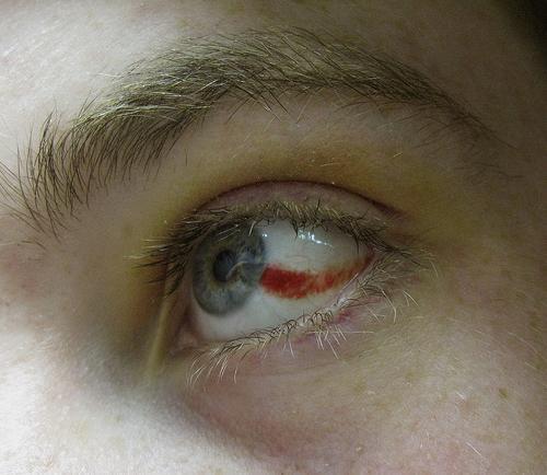 Воспаление бертолетовой железы лечение
