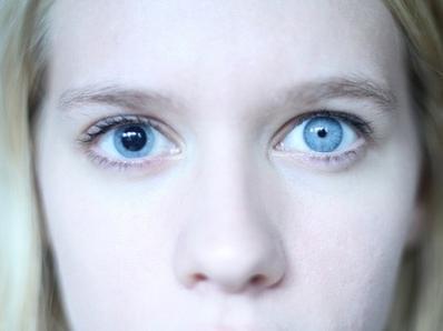 different sized pupils