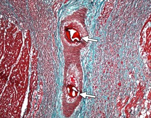 Микроинфаркт последствия