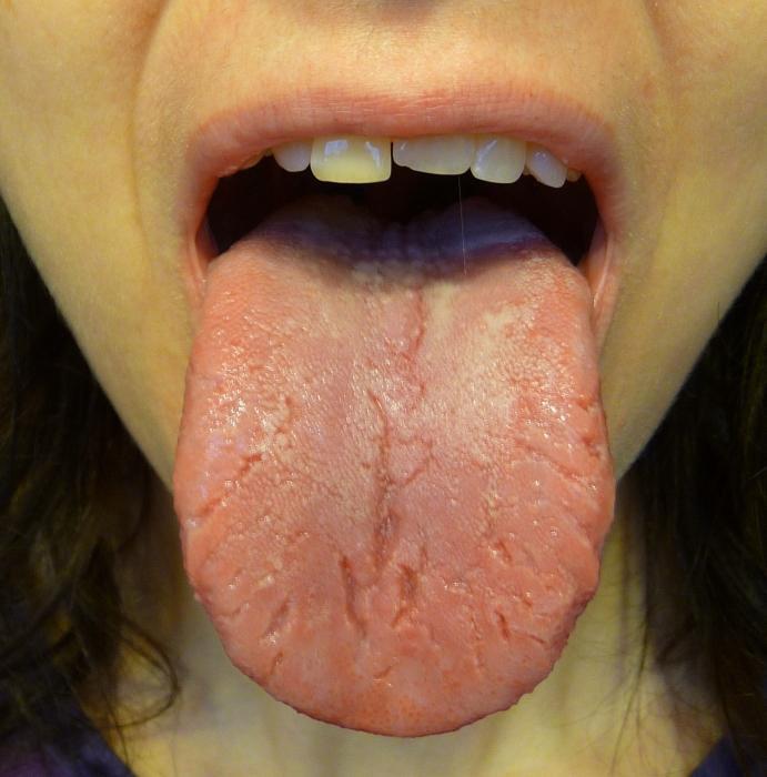 трещины на языке лечение