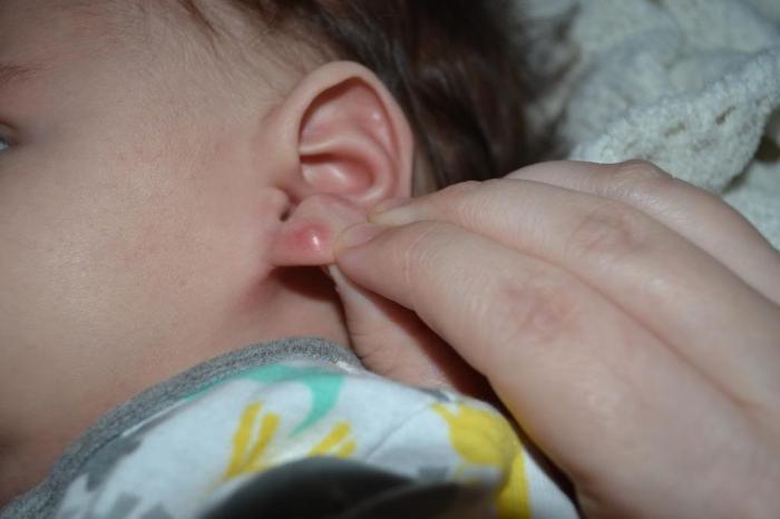 Шарики на ухе под кожей