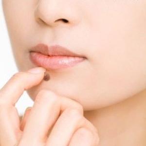 how to remove moles