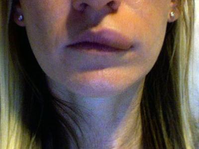 Если опухла одна сторона губы