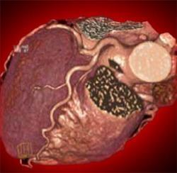 Медикаментозное лечение стабильной стенокардии