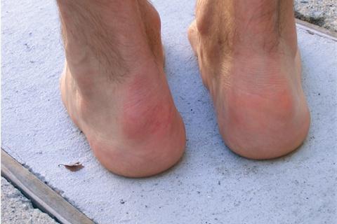подвернула ногу с внешней стороны и упала была боль потом прошла появился отек