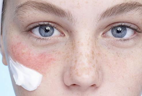 аллергия на холод красные пятна на лице