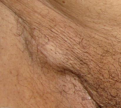 увеличенные паховые лимфоузлы при мужском обследовании