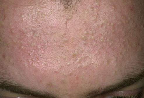 Уринотерапия и грибковые поражения кожи
