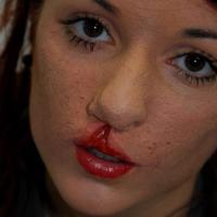 Заячья губа аборт или