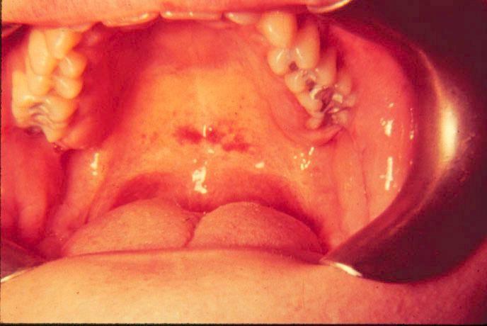 Мононуклеоз инфекционный
