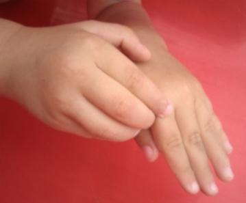 мазь от аллергии на коже список