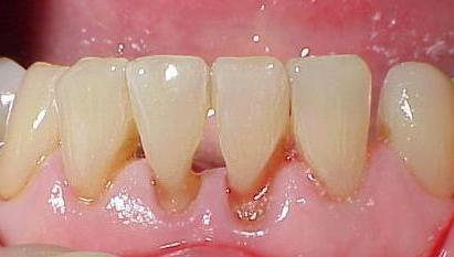 Как сделать чистку зубов в домашних