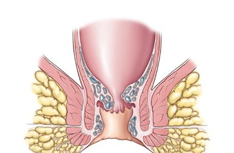 Геморроидальные узлы народное лечение