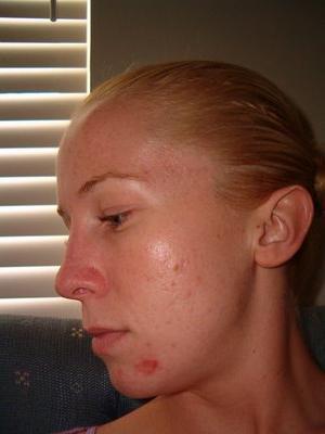 фурункулы фото на лице