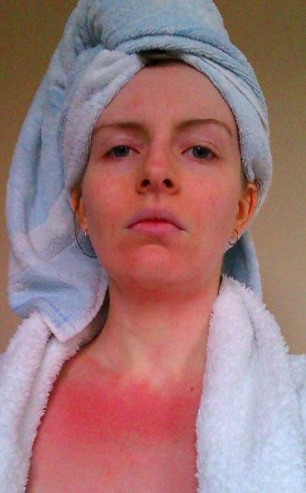 аллергия на горячую воду на руках