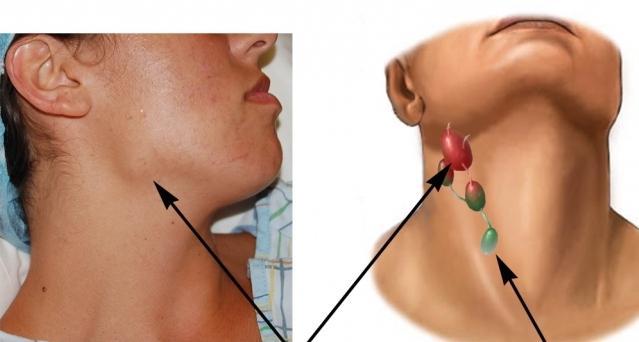 увеличение лимфоузлов на груди