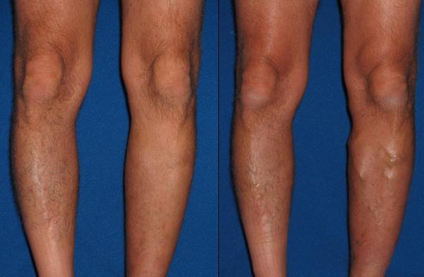Увеличенные вены на ноге - признак варикозной болезни :: SYL.ru