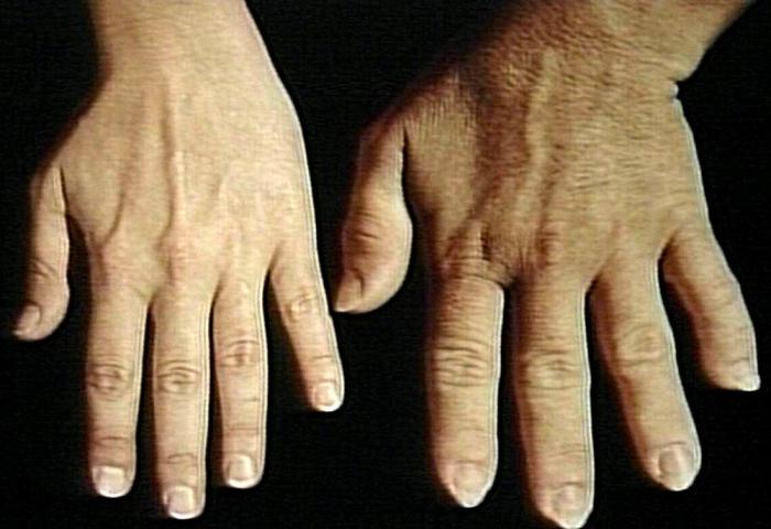 Опухают отдельные части тела что это