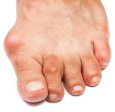 Растет косточка на ноге у большого пальца - что делать в первую очередь