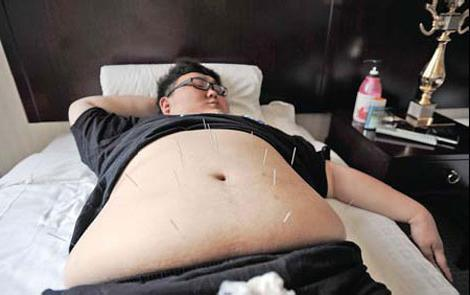 иглоукалывание лишний вес