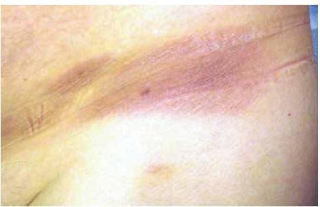 408Потемнения на коже под грудью