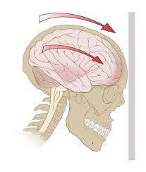 Признаки сотрясения мозга: советы специалиста