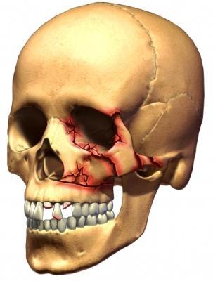 Перелом скуловой кости лечение
