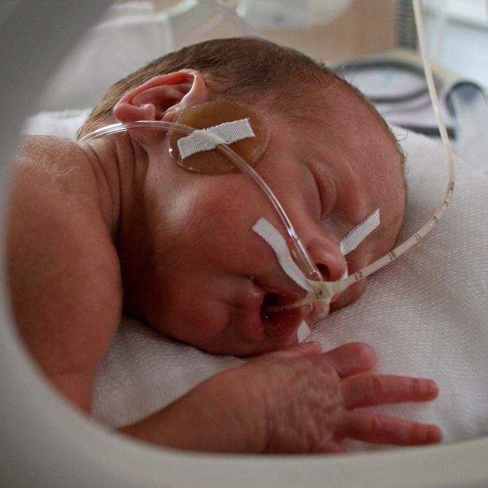 hypoxia in newborns
