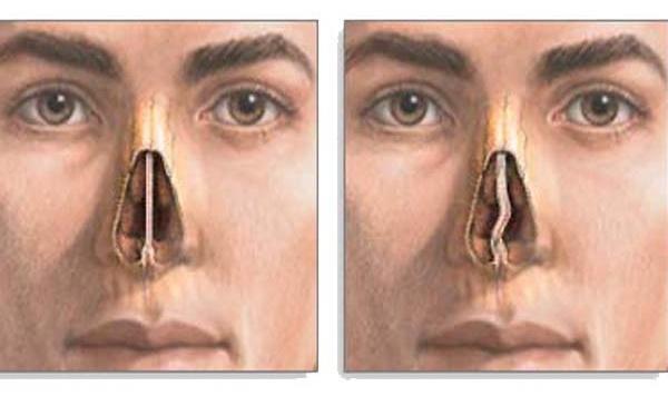 Кондиломы во влагалище причина появления