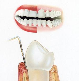 inflammation of the gums than to treat