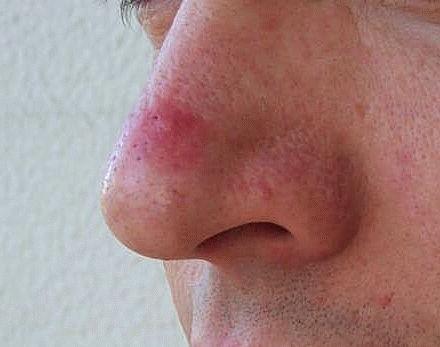 пятно на носу