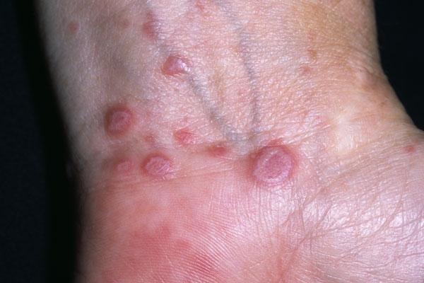 симптомы гепатит с у женщин фото