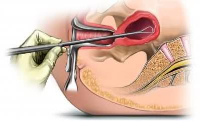 расширенная биопсия шейки матки