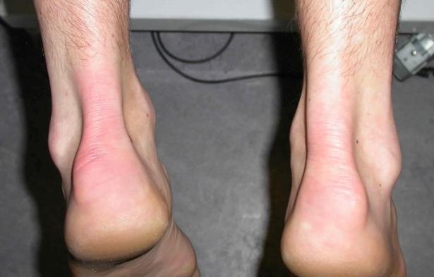 Болит кость под мизинцем на ноге