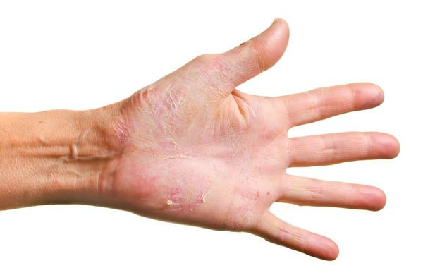 rash on the hands itches