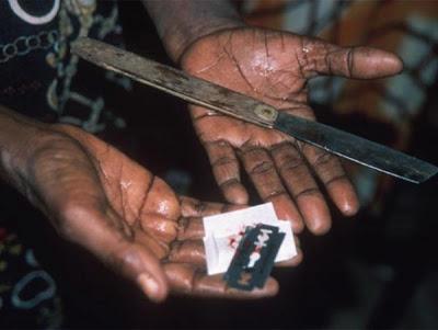 Обрезание у женщин что это такое