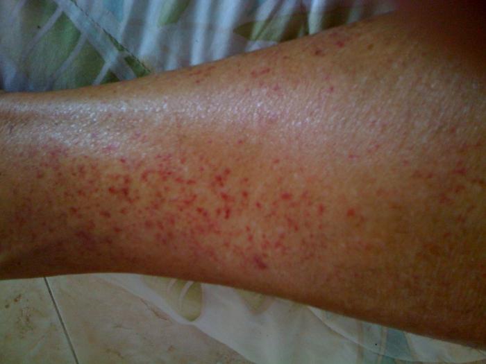 Виды аллергической сыпи пятен на коже  как выглядит