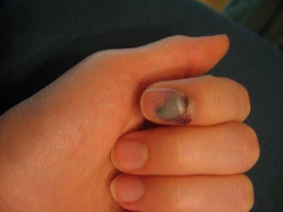 Прищемили ребенку палец ноготь