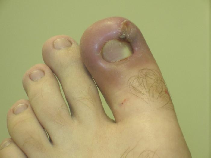 Почему и что делать если отслаиваются ногти на ногах