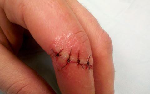 deep finger cut