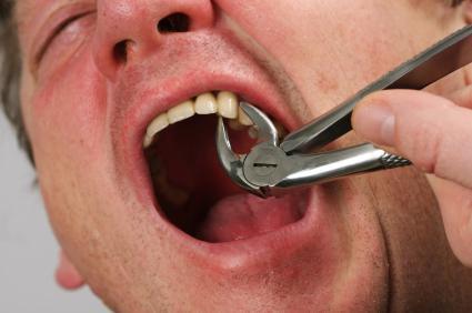 Если приснилось что сама себе вырвала зуб