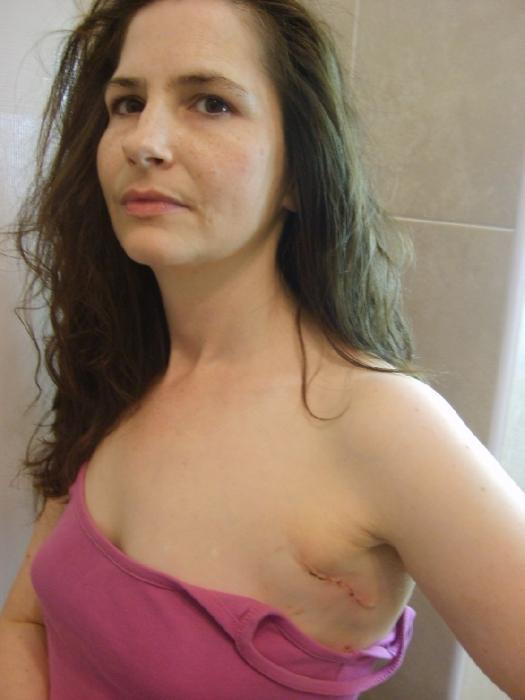 увеличение груди анатомическими имплантами фото